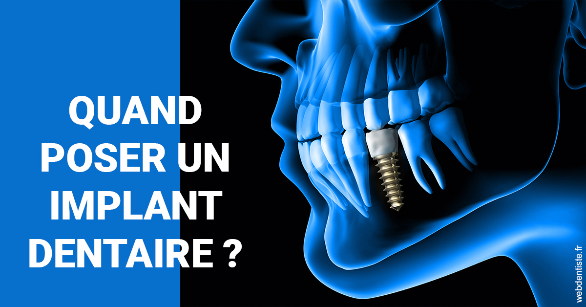 https://selarl-dr-nathan-michele.chirurgiens-dentistes.fr/Les implants 1